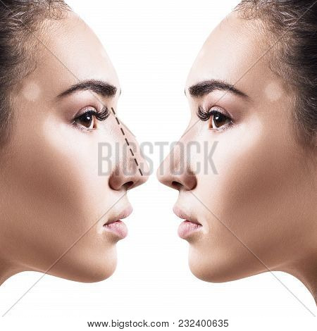 Female Nose Before And After Cosmetic Surgery. Isolated On White Background.