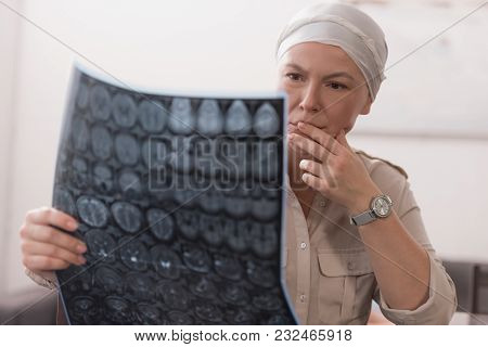 Serious Sick Mature Woman In Kerchief Holding Mri Scan