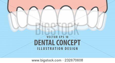 Banner Upper Essix Retainer Illustration Vector On Blue Background. Dental Concept.