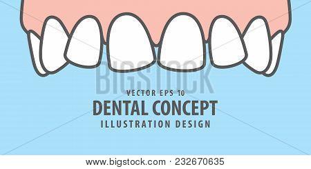 Banner Upper Askew Teeth Illustration Vector On Blue Background. Dental Concept.