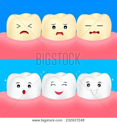 Cute Cartoon White And Yellow Teeth. Before And After, Whitening Oral Care Concept.  Dental Veneers