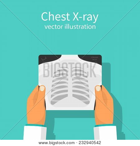 Chest X-ray. Doctor Checking Chest X-ray Holding In Hand. Medical Research, Analysis. Doctor Checks.