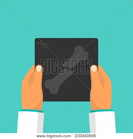 Doctor Holding In Hand X-ray Image Bone Fracture. Vector Illustration Flat Design. Medical Exam And