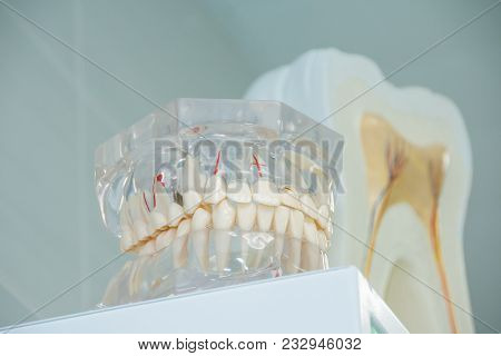 Clean Teeth Denture, Dental Cut Of The Tooth, Tooth Model, And Dentistry Instruments