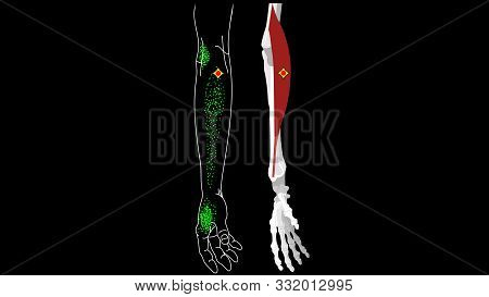 Brachioradialis Muscle. Pain And Trigger Points In The Hand. Muscles Of The Arm. Reflected Pain In T