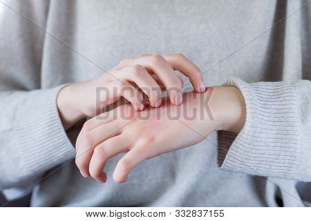 Closeup Girl Is Scratching Her Hand With Nails. Reddened, Inflamed Body Parts Causes Discomfort And