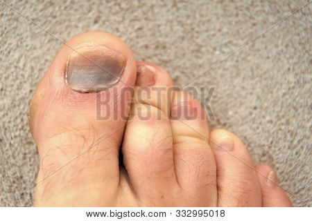 poster of toe injury. bruise and trauma treatment. medical intervention. panaritium. uncomfortable shoes. nail fungus. healthy feet. finger hematoma desease. Pedicure podiatry. Treatment of bruise and fracture.