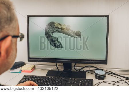 Man In Front Of A Computer Screen With A 3d Image Of A Dental Mould In Dental Laboratory
