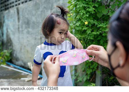 Adorable Little Child Girl With Big Capillary Strawberry Hemangiomas Red Birthmark On Head Refuses T