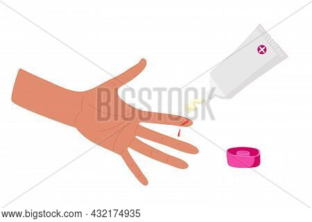 Physical Injury. First Aid For Cuts. Application Of Antibacterial And Wound Healing Agent. Open Plas