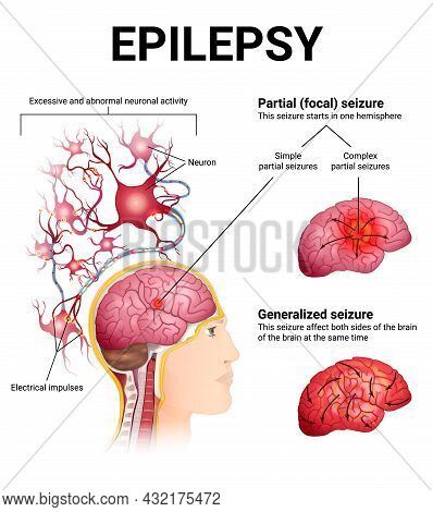Types Of Epileptic Seizures, Brain And Neurons