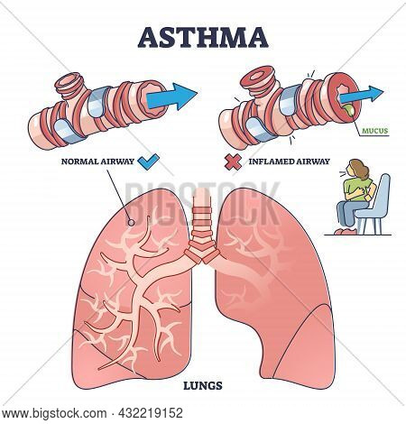 Asthma Health Condition Compared Normal And Inflamed Airway Outline Diagram. Labeled Educational Dif