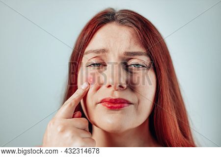 Upset Young Redhead Girl Showing Big Red Pimple With Pus To The Camera On Gray Wall Background. Prob