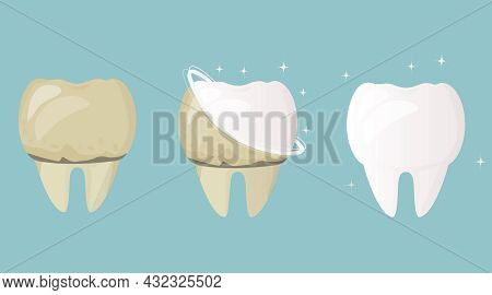 Whitening And Teeth Cleaning. Tooth Before Treatment And Brushing Yellow And Sick, After White And H