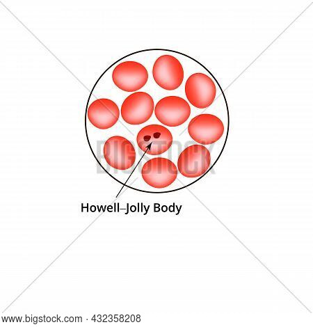 Howell Jolly Body. Anemia Of The Blood. Red Cells Are Erythrocytes In The Blood. Vector Illustration