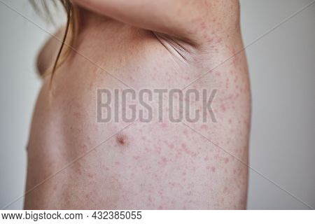 Allergic Rash On The Body Of The Patient. 5 Year Old Girl.