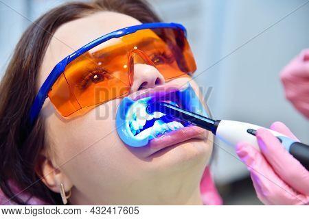 Woman Having Teeth Whitened By Dental Uv Whitening Device. Teeth Whitening Procedure  Concept. Close