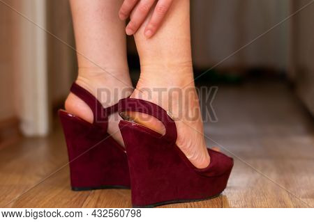 Pain In Feet And Legs Because Of Uncomfortable Shoes With High Heels.young Woman Touches Her Leg, Cl