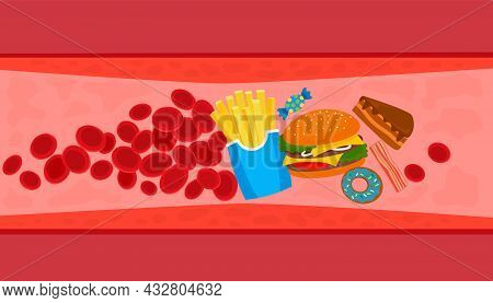 Fast Food Leads To Heart Problems. Vector Illustration Isolated