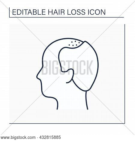Hair Loss Line Icon. Man Loses Hair. Male Pattern Baldness. Large Bald Area On Front Of Scalp.alopec