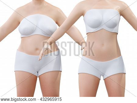 Liposuction Before And After In Young Woman. Plastic Surgery To Remove Localized Excess Fat. 3d Rend