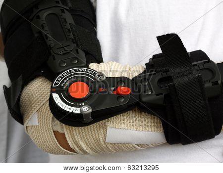 Broken arm support