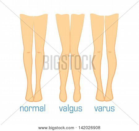Vector medical illustration types of curvatures human feet. Plastic surgery, treatment diseases leg bones, toe alignment valgus varus and normal. Ilizarov method