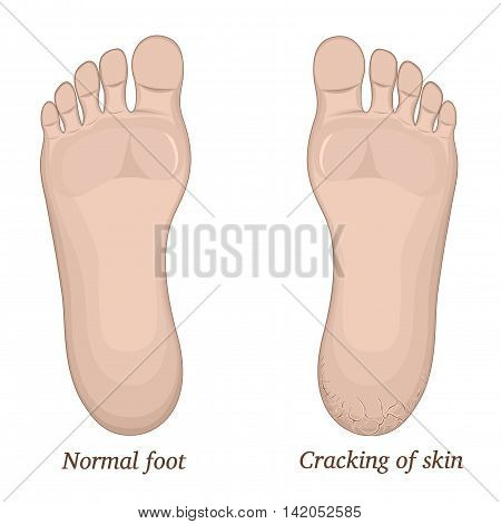 Illustration of healthy feet and feet with cracks on the heel, vector