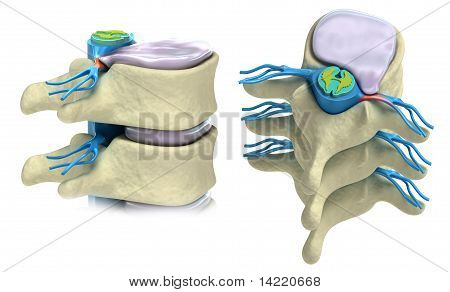 Prolapse of intervertebral disc isolated on white