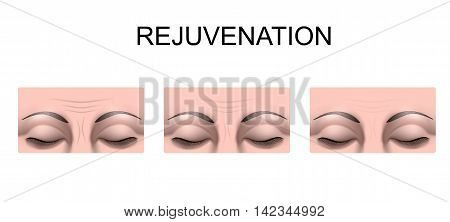 illustration of forehead wrinkles. rejuvenation. plastic surgery
