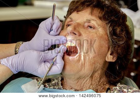 Elderly Woman Gettng Her Teeth Cleaned