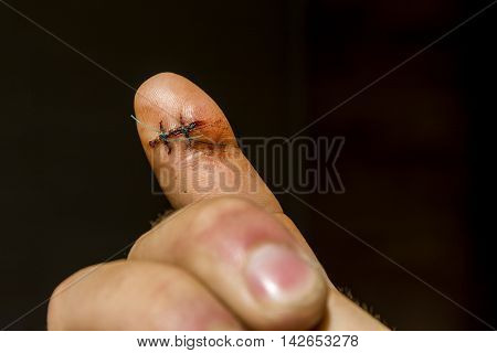On The Finger Are Two Non-absorbable Surgical Sutures.