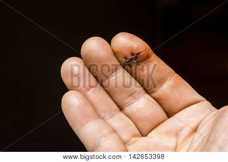 On the index finger of his right hand they are founded two non-absorbable surgical sutures. poster