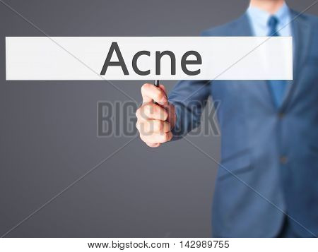 Acne - Business Man Showing Sign