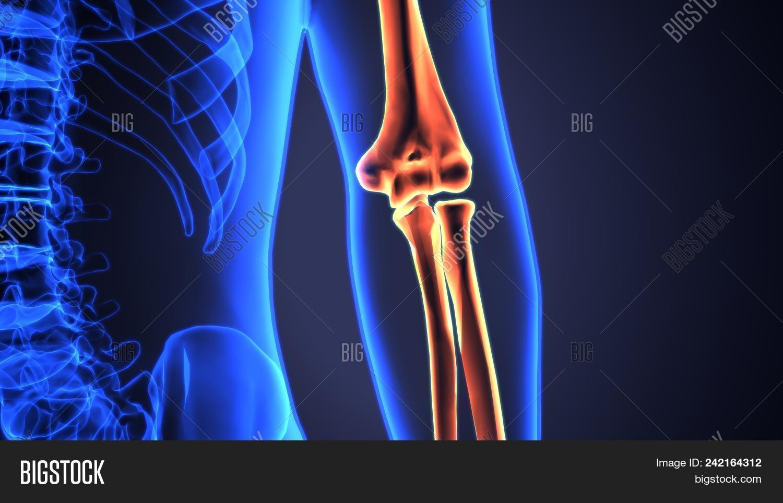 Human Arm Bones On Image & Photo (Free Trial) | Bigstock