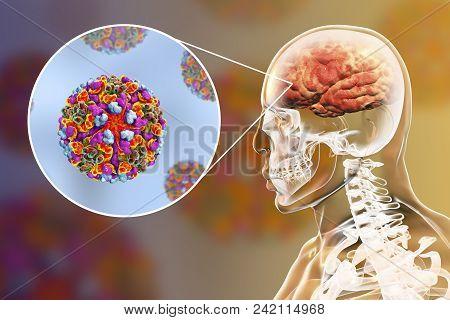 Western equine encephalitis, medical concept, 3D illustration showing brain infection and close-up view of Western equine encephalitis viruses poster