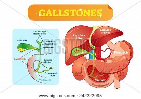 Gallstones Anatomical Cross Section Vector Illustration Diagram With Abdominal Cavity And Gallbladde