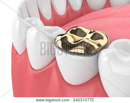 3D Render Of Teeth With Dental Golden Onlay Filling