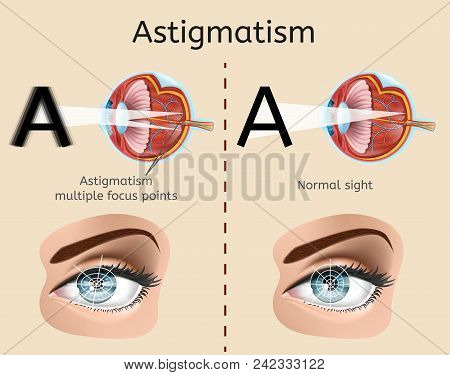 Astigmatism Vector Diagram With Human Eye Cross Section Anatomical Illustration And Difference Demon