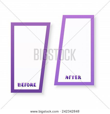Before After Vector & Photo (Free Trial) | Bigstock