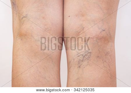 Female Legs With Varicose Veins And Leg Spiders. The Concept Of Human Health And Illness. White Back