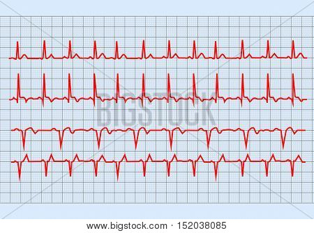 The graph electrocardiogram heart on paper form . Health concept. Vector illustration.