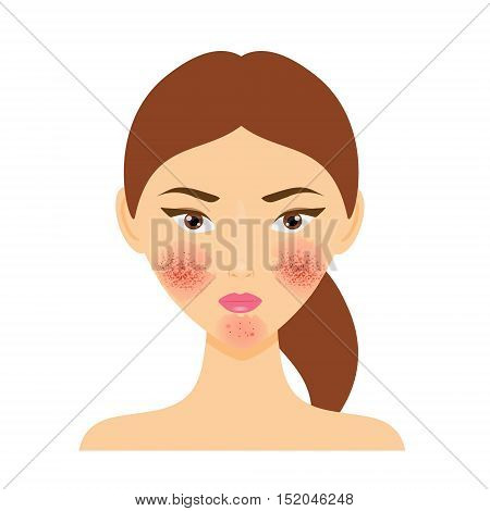 Woman with rosacea psoriasis skin disease. Vector illustration of scab damaged female face