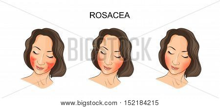 illustration of girl's face damaged rosacea. dermatology poster