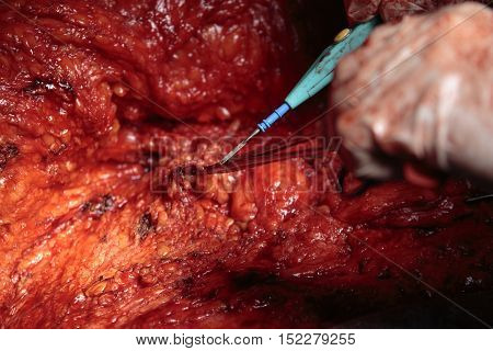 cauterization close-up with coagulator and clamp during the surgery