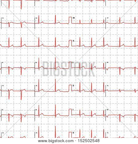 Typical human electrocardiogram red graph with marks on white, seamless pattern