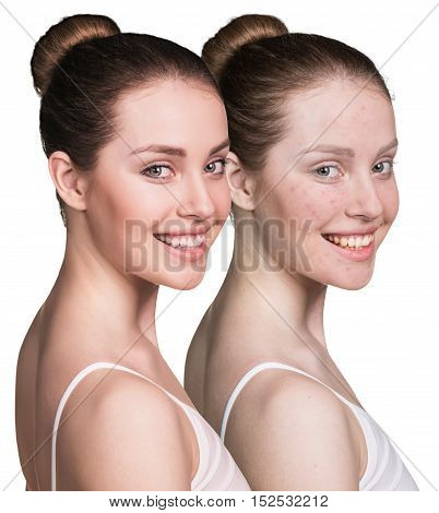 Woman with problem skin on her face before and after treatment, over white background