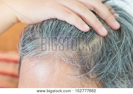 blurred of going gray in young woman shows her gray hair hair getting grey and balding