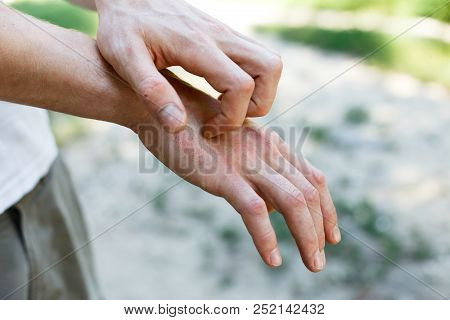 The Problem Of Many People - Eczema On Hand. Street Background. Man Itchind Psoriasis Skin With Red