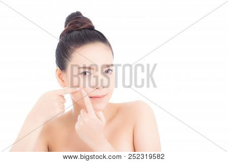 Portrait Of Beautiful Woman Asian Is A Acne, Zit Treatment, Girl Problem Beautiful Face, Beauty Perf